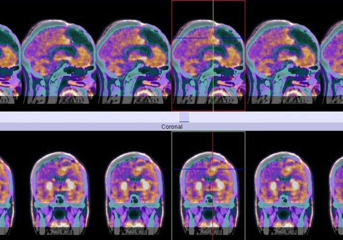 PET scan of glioblastoma cancer